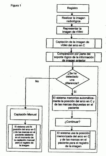 APARATO PARA REGISTRAR IMAGENES RADIOGRAFICAS CON UN SISTEMA DE NAVEGACION MEDICA.