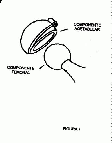 COMPOSICION, FABRICACION Y UTILIZACION DE NITRURO DE SILICIO COMO MATERIAL BIOLOGICO DE USO MEDICO.