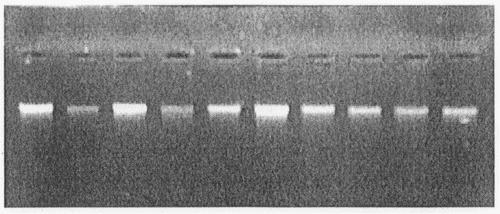 METODO UNIVERSAL DE EXTRACCION DE ADN DE ALTA CALIDAD.
