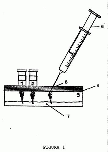 proceso de elaboracion de un gel de plaquetas autologas u2026