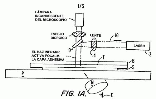 MICRODISECCION DE PRECISION POR CAPTURA CON LASER UTILIZANDO LONGITUD DE PULSO CORTA.