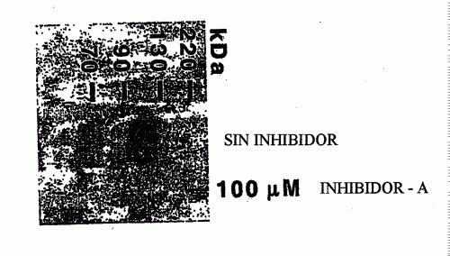 METODO QUE PERMITE DETECTAR MODULADORES DEL AMBITO QUINASA DEL RECEPTOR DEL VEGF.