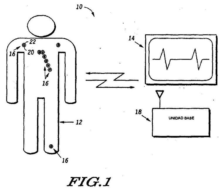 como colocar los electrodos para monitorizacion