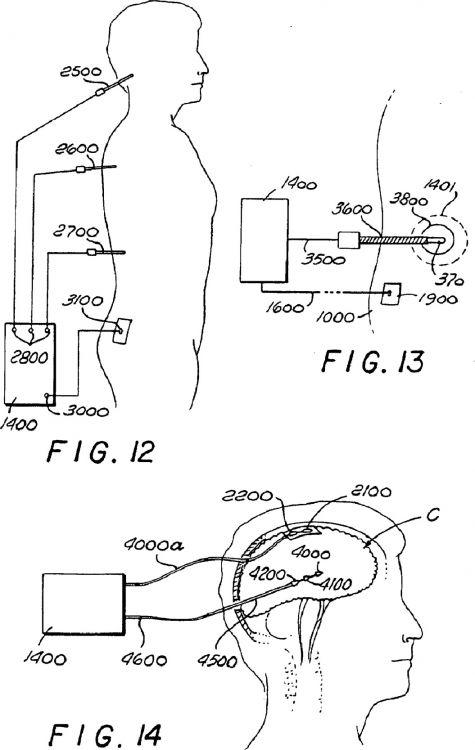 Circuito Nervioso : Sistema para la modificaciÓn del tejido nervioso