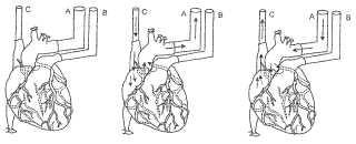 Descelularización y recelularización de órganos y tejidos.