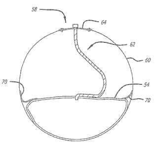 Método para ajustar un depósito flexible a una embarcación inflable.