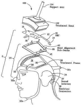 Facilitación de tratamiento mediente la estimulación magnética.