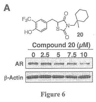 Agentes supresores del receptor de andrógenos.