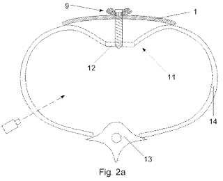 Dispositivo para uso en el tratamiento quirúrgico del pecho en embudo.