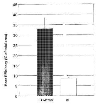 Composiciones y métodos para la aplicación tópica y liberación transdérmica de toxinas botulínicas.