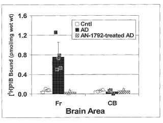 Uso de derivados de tioflavina radiomarcados en formación de imágenes de amiloide para evaluación de las terapias antiamiloide.