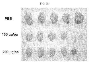 Anticuerpo monoclonal humano que neutraliza el receptor del factor de crecimiento endotelial vascular y uso del mismo.