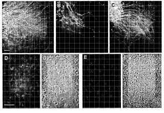 Quimera IL-6R/IL-6 para terapia de neuropatía periférica inducida por quimioterapia.