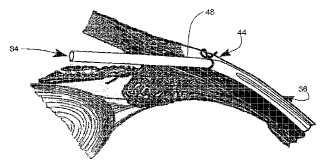 Implante oftálmico tubular de corte transversal con forma de C para la reducción de la presión intraocular en ojos con glaucoma y método de uso.