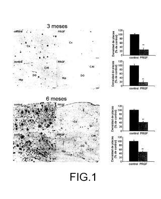 Composición con factores de crecimiento destinada al tratamiento intranasal de una enfermedad neurodegenerativa u otra patología del sistema nervioso central, y su método de fabricación.