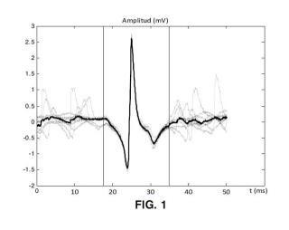 Método y sistema de determinación de la duración de los potenciales de acción de unidad motora en señales electromiográficas intramusculares.
