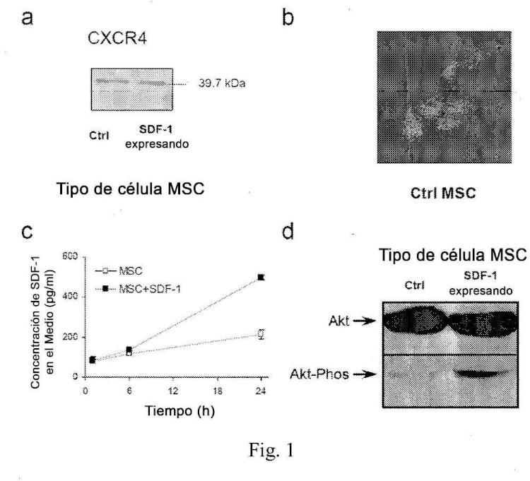 SDF-1 para su uso en el tratamiento de trastornos vasculares periféricos isquémicos.