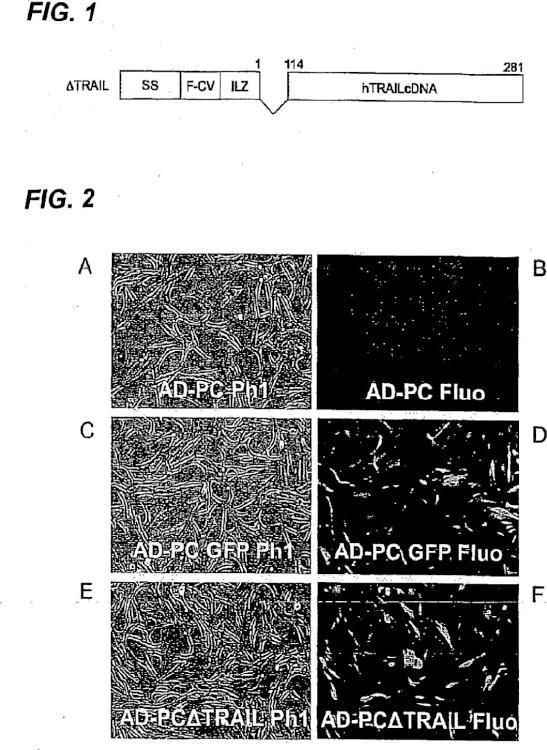 Método de producción de proteína TRAIL antitumoral.