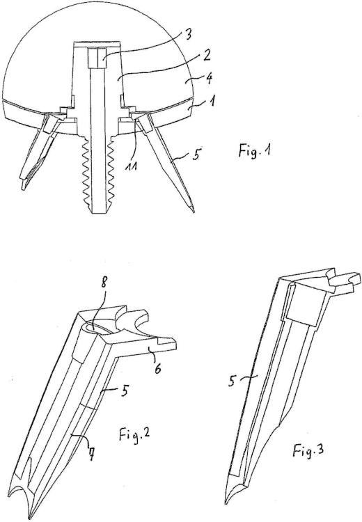Sistema modular para el anclaje y el posicionamiento de componentes de implantes.