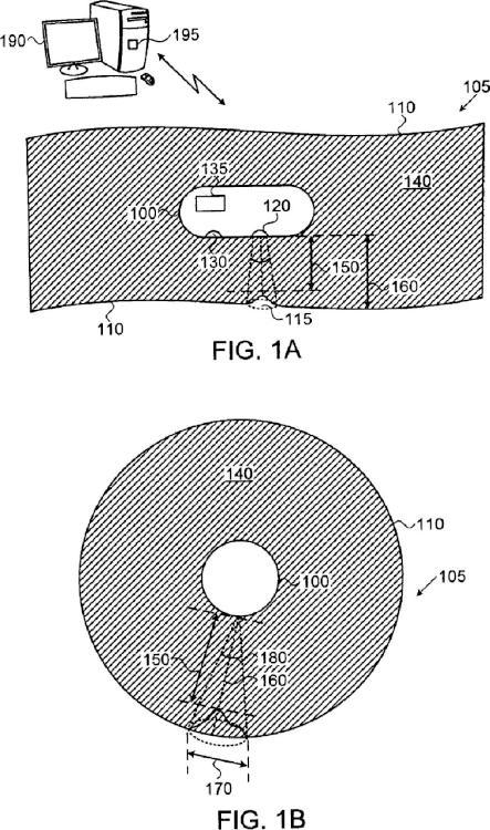 Estimación de distancias y tamaño de lesiones en el colon con una cápsula de formación de imágenes.