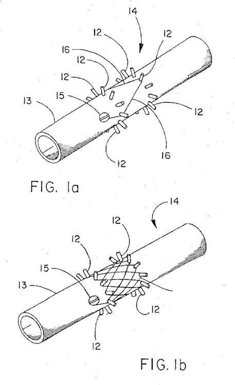 Dispositivo implantable con filamento enrollado.