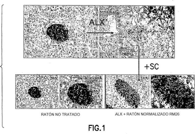 Células madre mesenquimales CD34 negativas modificadas genéticamente para el tratamiento de tumores.