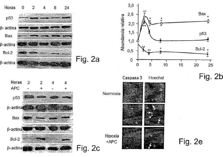 La actividad neuroprotectora de la proteína C activada es independiente de su actividad anticoagulante.
