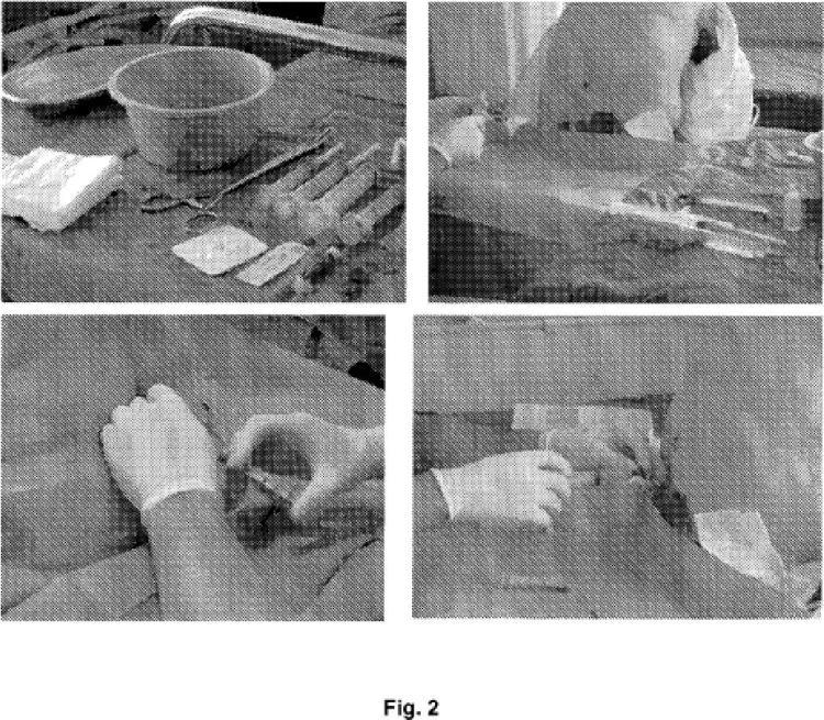 2-Mercaptoetano sulfonato sódico para uso en el tratamiento del dolor lumbar.