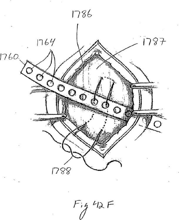 Dispositivo de fijación de tejido anclado de forma remota.