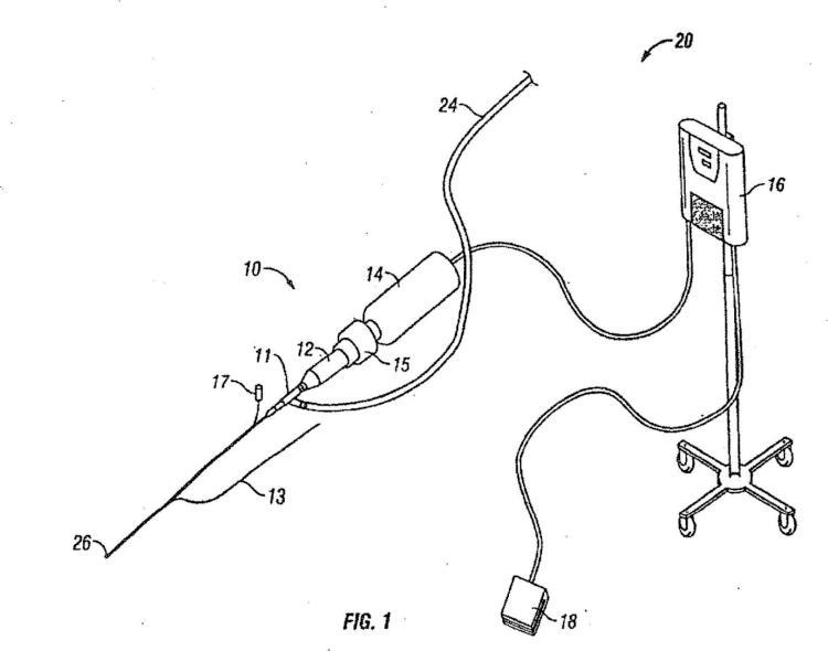 Dispositivo de catéter de ultrasonidos.