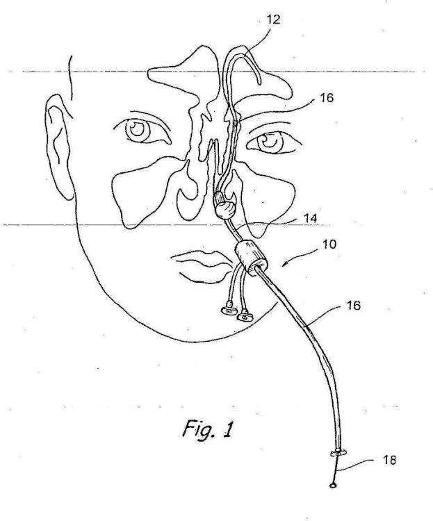 Sistema para tratar la sinusitis.