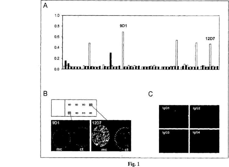Anticuerpo monoclonal humano específico para cada tumor.