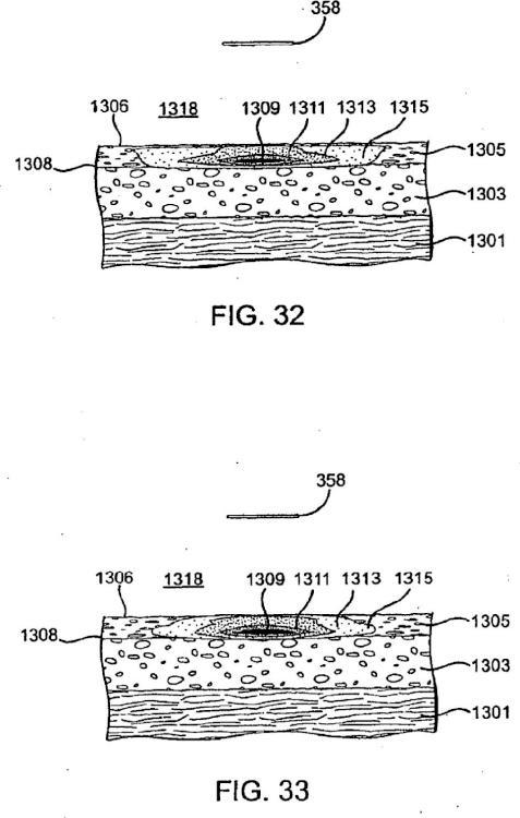 Sistemas para crear un efecto sobre un tejido especificado usando energía de microondas.