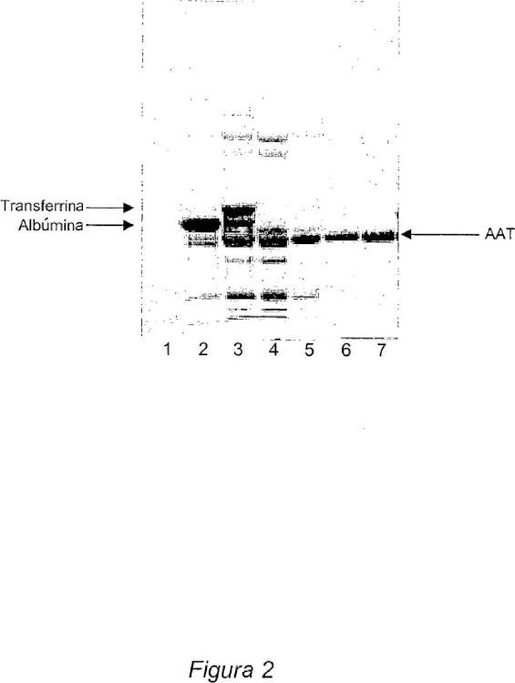 Método para la purificación de alfa-1-antitripsina.