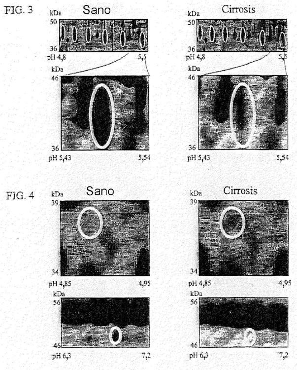 Diagnóstico clínico de fibrosis/cirrosis hepática usando biomarcadores de proteínas plasmáticas humanas poco abundantes.
