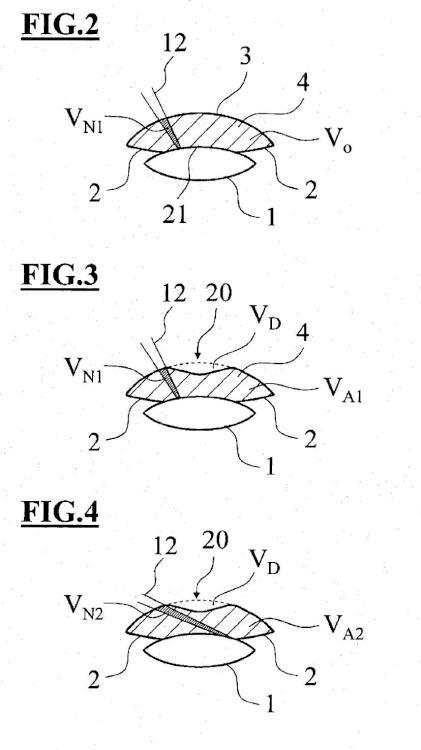 Dispositivo de control para un sistema oftalmoquirúrgico.