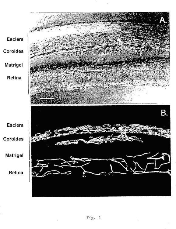 Uso de rapamicina para el tratamiento o prevención de la degeneración macular asociada a la edad.