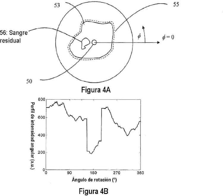 Métodos cuantitativos para obtener características de un tejido a partir de imágenes de tomografía por coherencia óptica.