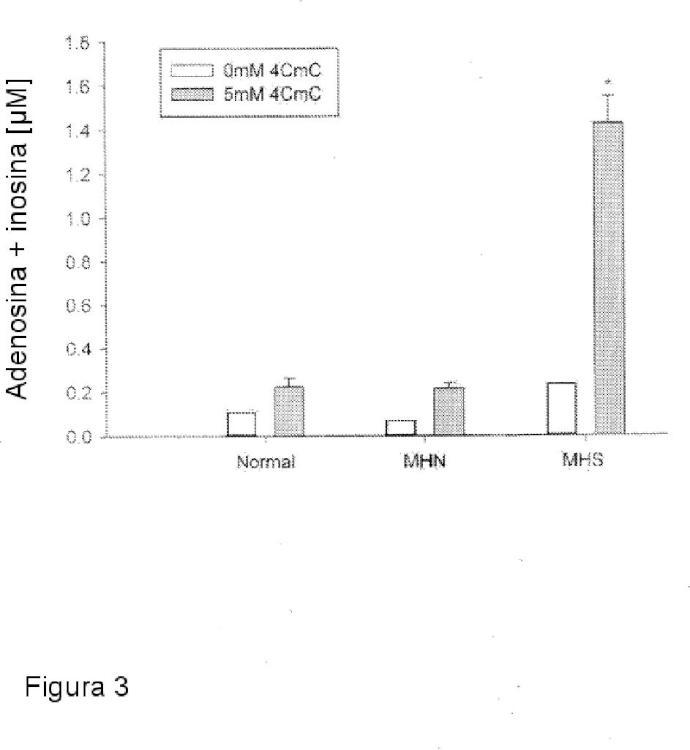 Método para el diagnóstico de enfermedades relacionadas con RYR1.