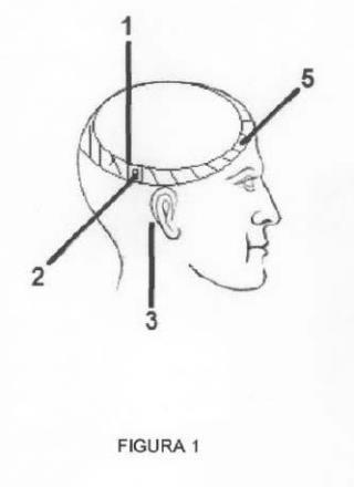 Sistema para transmisión sonido aéreo temporal con medios para asegurarlo a la oreja.