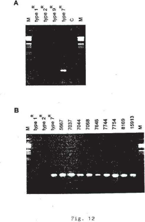 Vacunas y pruebas de diagnóstico de Streptococcus suis.