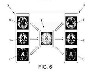 Método para la detección de áreas anómalas en el cerebro a partir de imágenes de resonancia magnética.