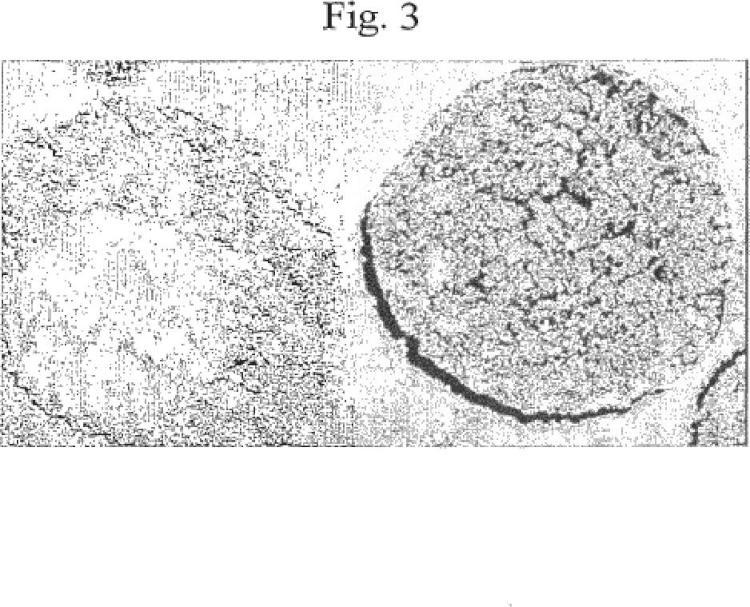 Procatalizador Ziegler-Natta secado por pulverización robusto y procedimiento de polimerización que utiliza el mismo.