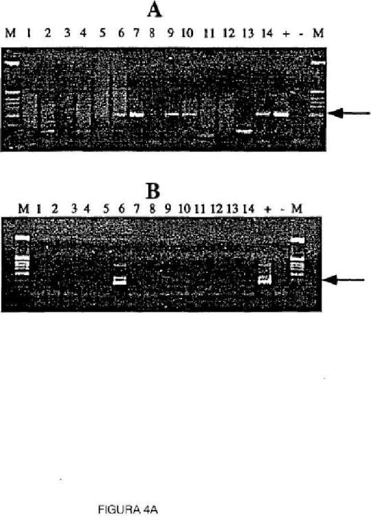 Ensayo para la metilación en el gen para la GST-Pi.