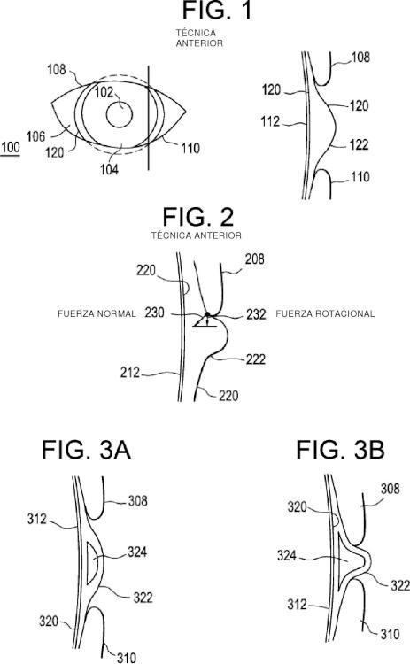 Zonas de estabilización dinámica para lentes de contacto.