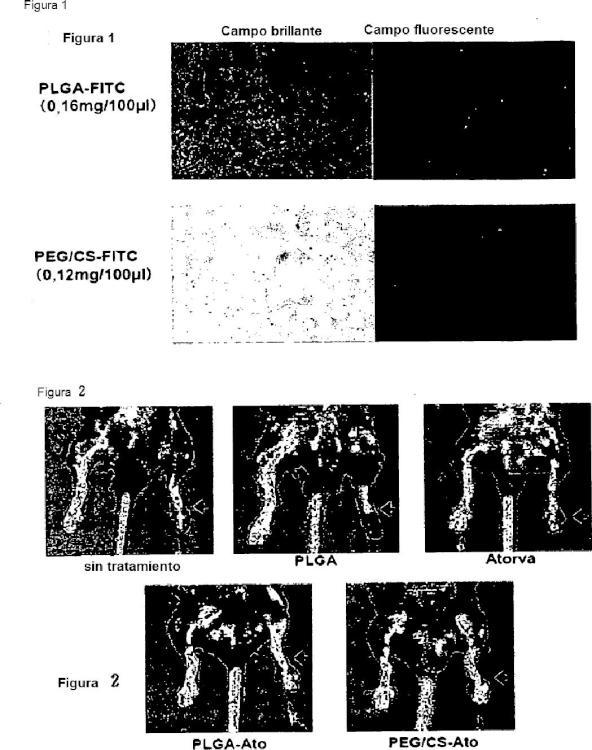 Composición farmacéutica que contiene una nanopartícula de estatina encapsulada.