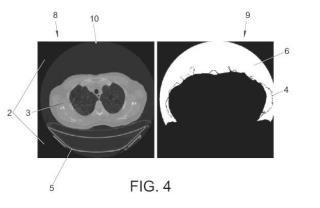 Método de segmentación por umbral adaptativo variable para la obtención de valores de referencia del aire corte a corte en estudios de imagen por tomografía computarizada.