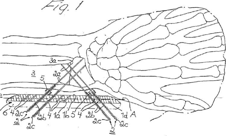 Dispositivo para la fijación de una fractura ósea.