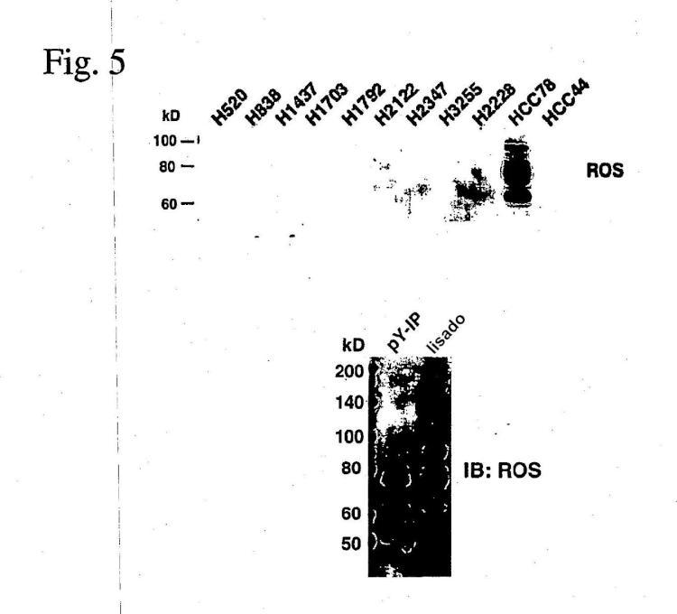 ROS quinasa mutante y de translocación en el carcinoma pulmonar no microcítico humano.