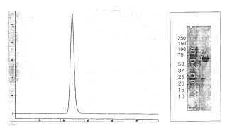 Antagonistas de activina-ActRII para su uso en el tratamiento de la anemia.
